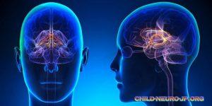 Kenali Gejala Penyakit Saraf Cerebral Palsy