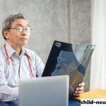 Peran Penting Seseorang Dokter Saraf Dibidang Ilmu Neurologi