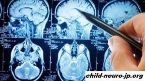 Sindrom Otak Saraf Misterius Menghentikan Dokter Kanada Canadian