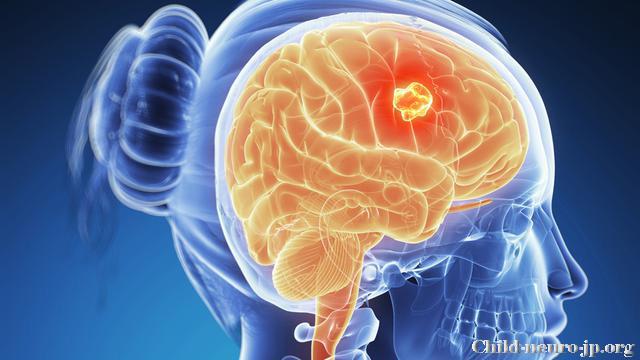 Jenis Tumor Otak Dan Sumsum Tulang Belakang Pada Anak