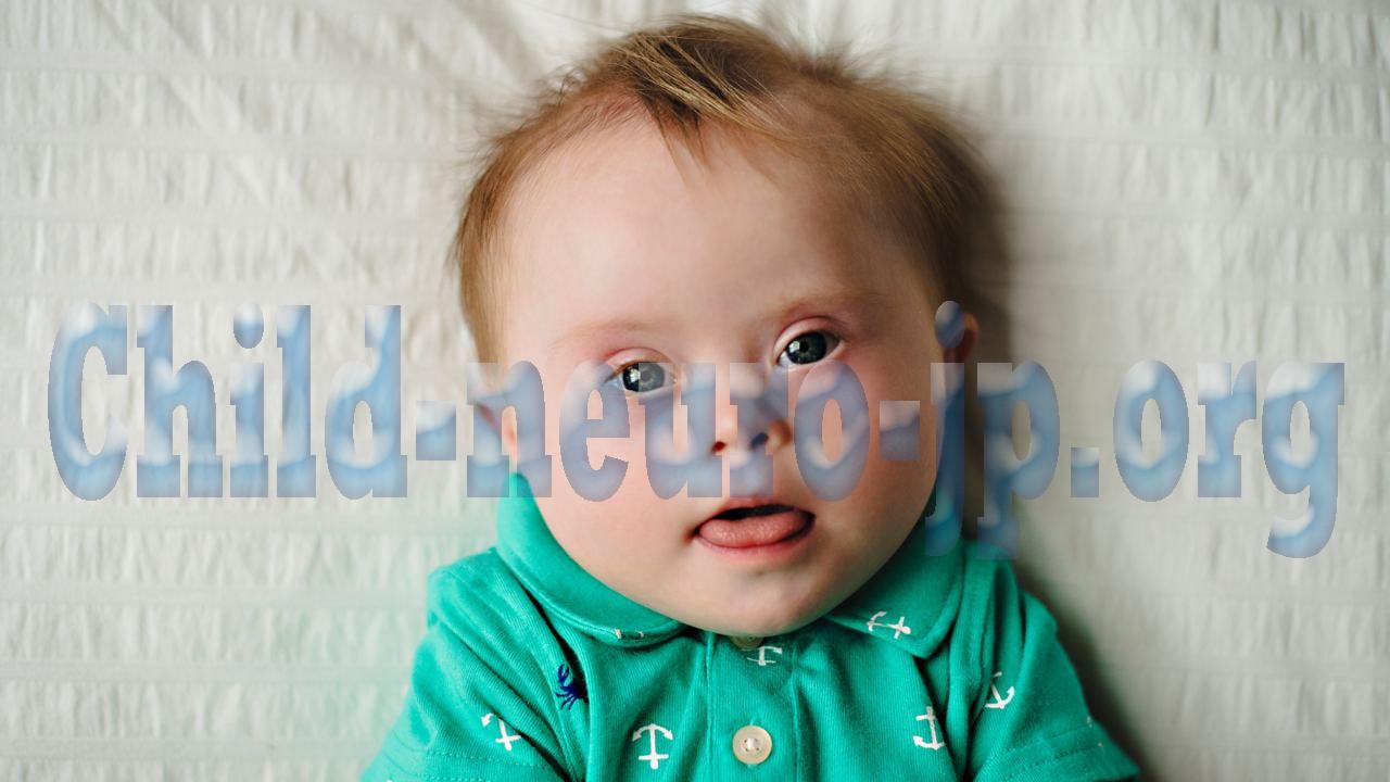 Neuro Ophthalmological Pada Anak Dengan Down Syndrome