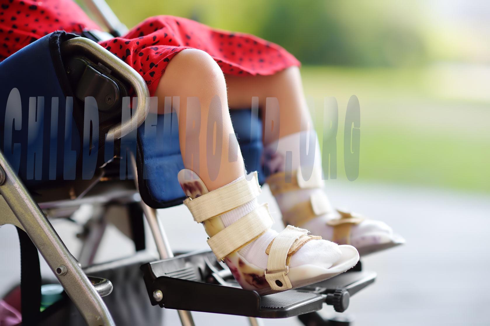 Panduan Terapi Fisik Untuk Cerebral Palsy