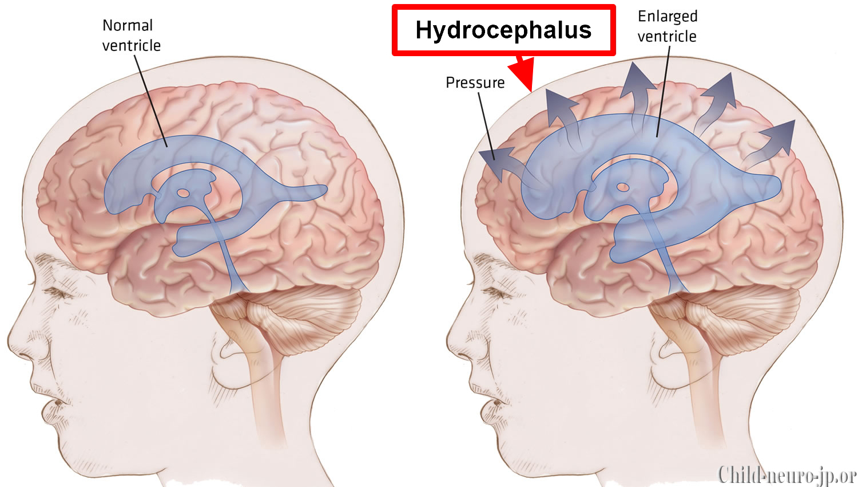 Pengaruh Hidrosefalus Pada Perkembangan Anak